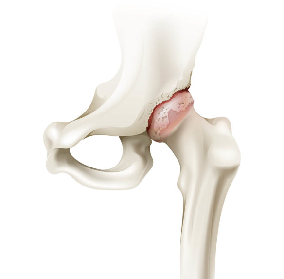 Common Hip Pain Condition - Oklahoma Hip Joint Pain Specialists