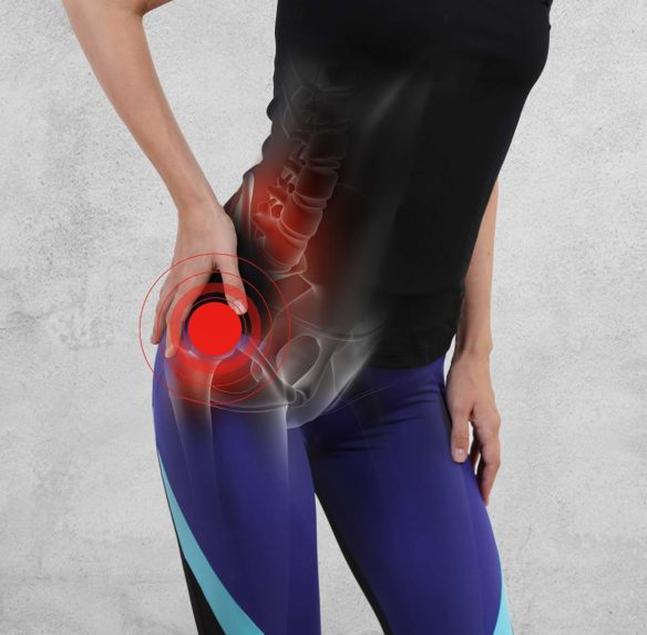 Hip Pain Conditions in Oklahoma