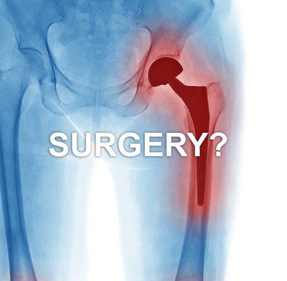 Surgery Alternatives to Hip Pain