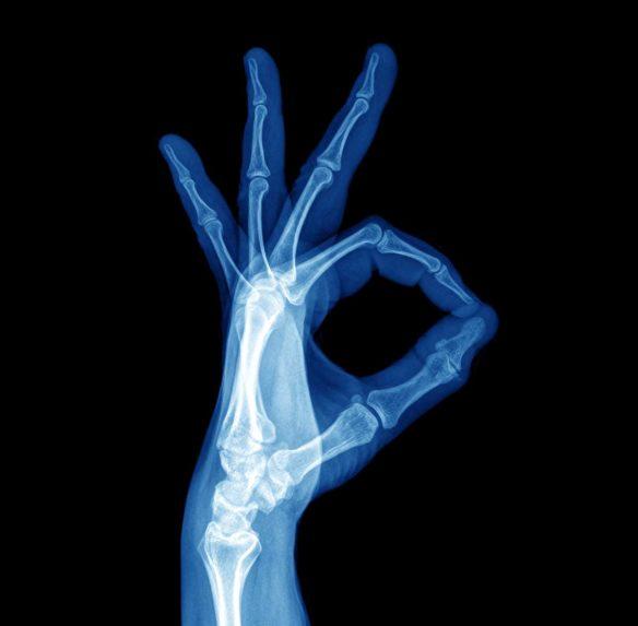 Hand and Wrist Pain Anatomy