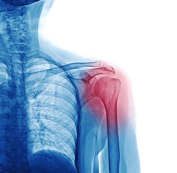 Shoulder Pain Structures - Shoulder Pain Anatomy
